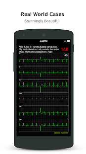 ECG Pro - Real World ECG / EKG Cases