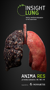 INSIGHT LUNG for pc