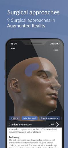UpSurgeOn Neurosurgery 2.57 screenshots 1