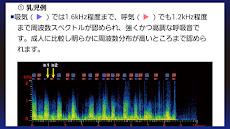 肺の聴診トレーニング-見える肺音のおすすめ画像4