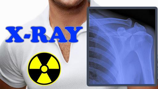 X-Ray Filter Photo 32 Screenshots 9