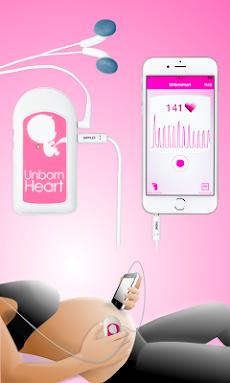 Fetal Doppler UnbornHeartのおすすめ画像1