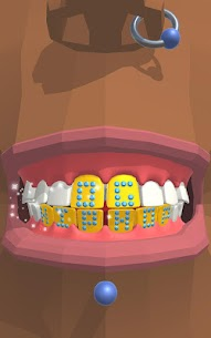 Dentist Bling MOD APK 0.7.2 (Unlimited Money) 12