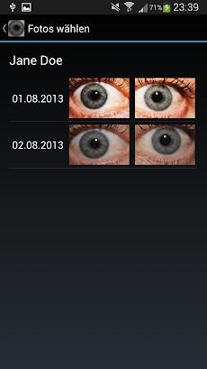 Eye Diagnosisのおすすめ画像1