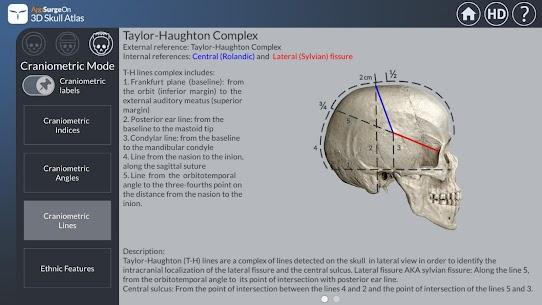 3D Skull Atlas 5