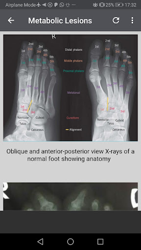 Musculoskeletal X-Rays - All in 1 1.1.6 screenshots 8