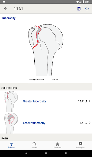 AO/OTA Fracture Classification 1.3.1 screenshots 14