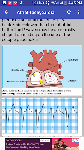 Clinical ECG Guide. 2.1.3D screenshots 1