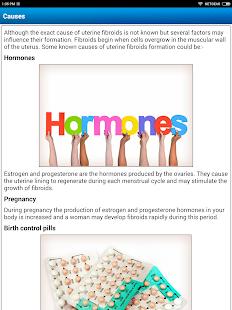 Uterine Fibroid Causes Symptoms Types & Treatment