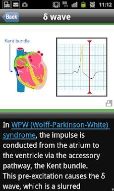 らくらく心電図トレーニング(英語モード付き)のおすすめ画像5