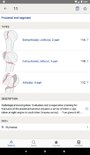 AO/OTA Fracture Classification 1.3.1 screenshots 12