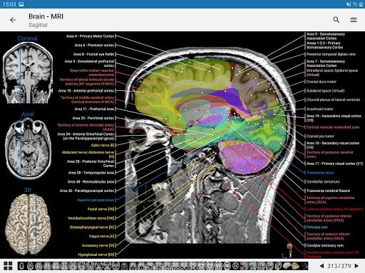e-Anatomy 4.12.12 Screenshots 11