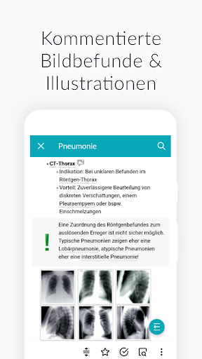 AMBOSS Wissen fu00fcr Mediziner 2.44.0.4064 Screenshots 7