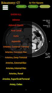 Radiology CT Anatomy 1.6 Screenshots 3