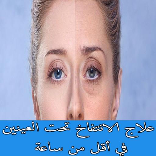 علاج الانتفاخ تحت العينين في أقل من ساعة Apps On Google Play