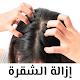 وصفات علاج القشرة من الشعر بالليمون والخل per PC Windows