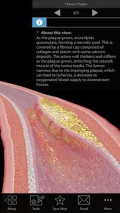 Physiology  Pathology Apk Download 4
