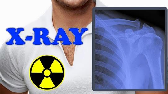 X-Ray Filter Photo 3