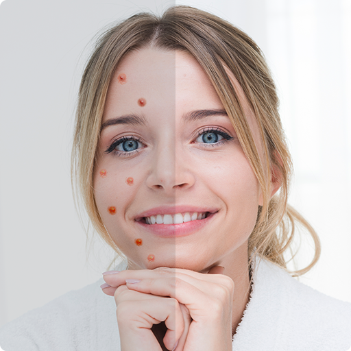 Remove Acne from Face