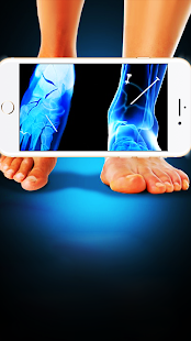 X-ray scanner image processing 1.0 APK +  (Unlimited money)