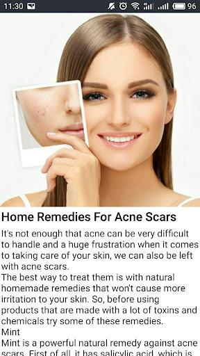 The ordinary SKINCARE Pure skin Best moisturizer 1.0 screenshots 3