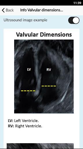 Dating calculator ultrasound When LMP