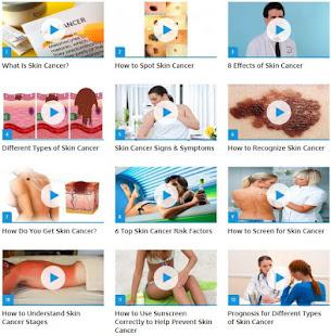 Skin Cancer Guide 2.3 screenshots 1