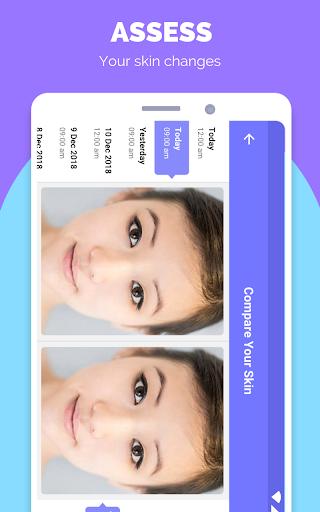 TroveSkin: Your Skincare Coach 7.4.4 Screenshots 3