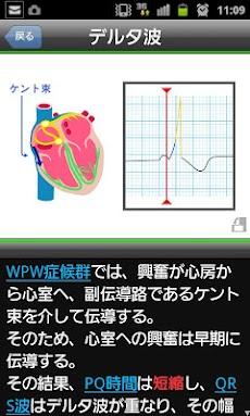 らくらく心電図トレーニング(英語モード付き)のおすすめ画像3