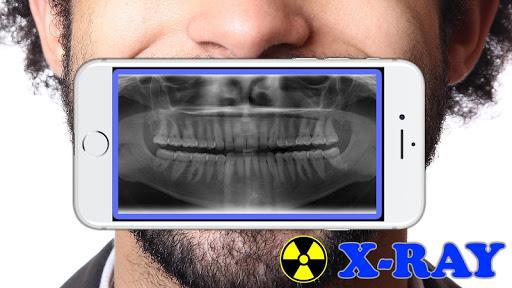 X-Ray Filter Photo 32 Screenshots 2