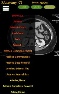 Radiology CT Anatomy 1.6 Screenshots 6
