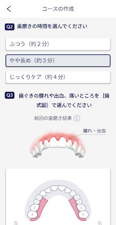 ドルツアプリ:歯科医監修の歯磨きレッスン動画で、歯周ケアの正しい方法を身に付けましょう。のおすすめ画像5