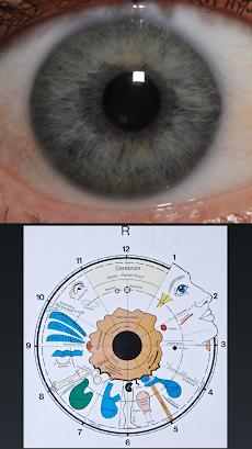 Eye Diagnosisのおすすめ画像3