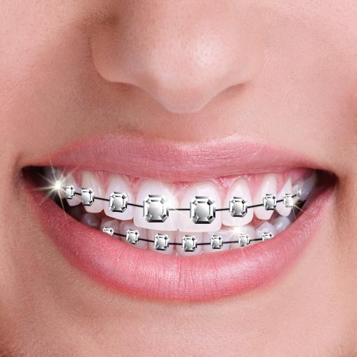 Aus mit zahnspange wie sehe ich Diastema: Zahnlücke