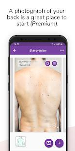 Miiskin - Skin Cancer eHealth. Track & Check Moles