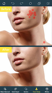 Photo Retouch- Object Removal 3.5 Screenshots 2