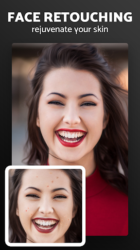 Pixl - Face Retouch & Blemish Remover Photo Editor 1.0.14 Screenshots 3