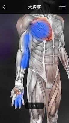 筋のトリガーポイントのおすすめ画像2