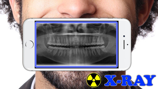 X-Ray Filter Photo 32 Screenshots 5