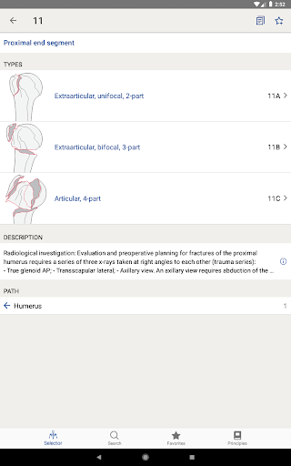 AO/OTA Fracture Classification 1.3.1 screenshots 7