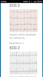 Diagnose ECG For Pc- Download And Install  (Windows 7, 8, 10 And Mac) 2