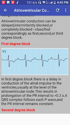 Clinical ECG Guide. 2.1.3D screenshots 2