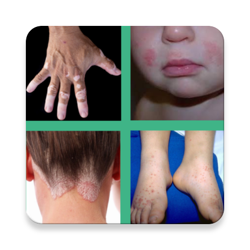Száraz, atópiás bőr | BIODERMA