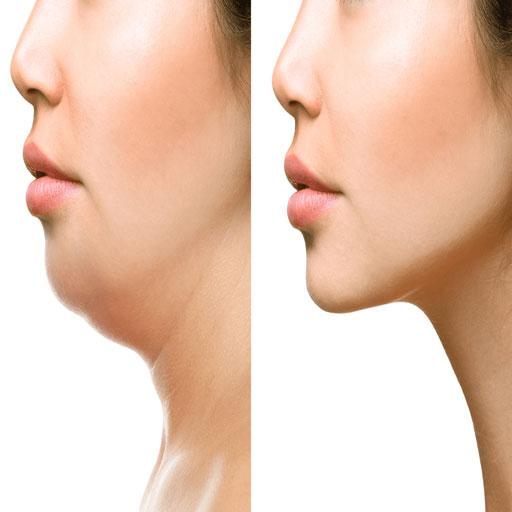 Baixar How To Lose Face Fat
