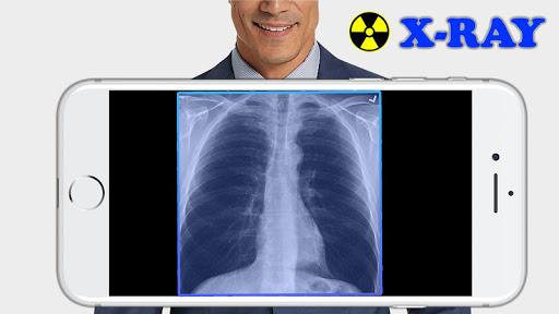 X-Ray Filter Photo 32 Screenshots 1