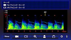肺の聴診トレーニング-見える肺音のおすすめ画像2