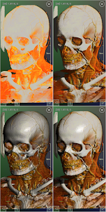 DroidRender  3D DICOM For Pc In 2020 – Windows 7, 8, 10 And Mac 2