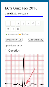 Diagnose ECG For Pc- Download And Install  (Windows 7, 8, 10 And Mac) 3