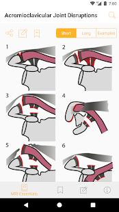 MRI Essentials