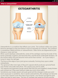 Osteoarthritis Joint Pain Treatment Home Remedies